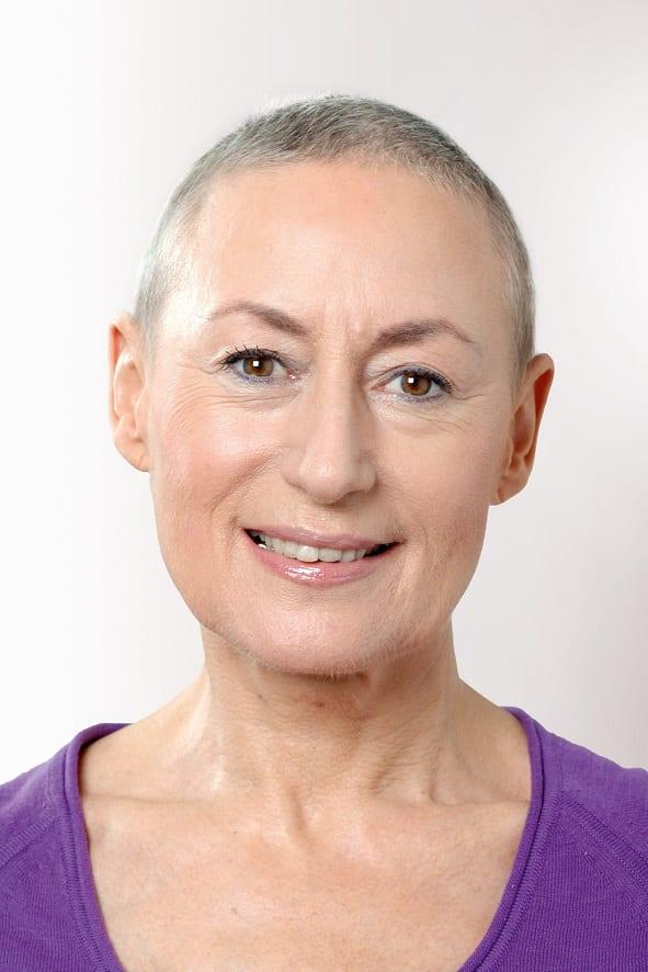haaruitval bij kanker